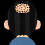 嫁さんに薄毛を指摘されたのでミノキシジルを服用したら・・・